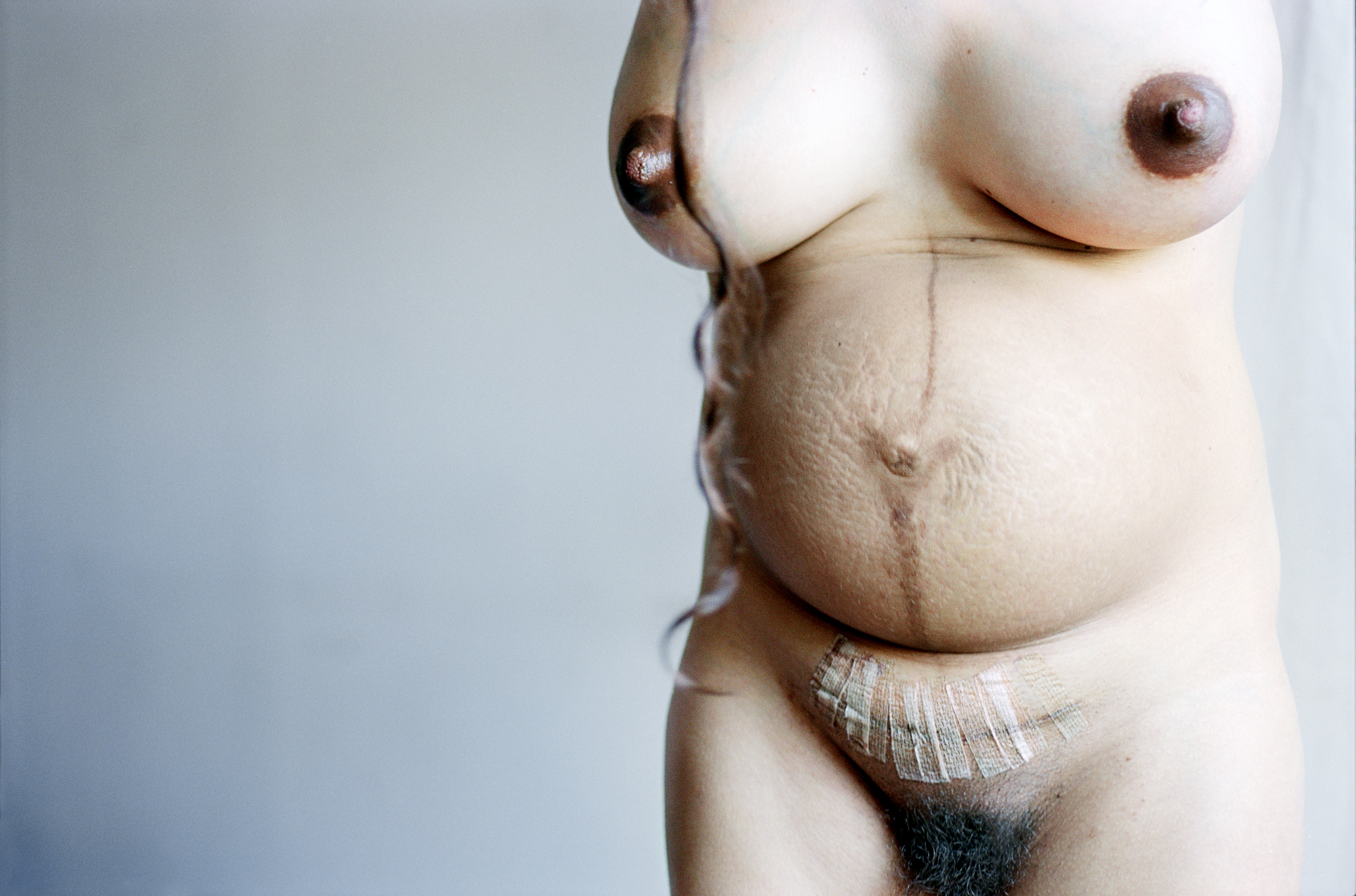 Elinor Carucci. My Belly After Giving Birth and C Section, 2004