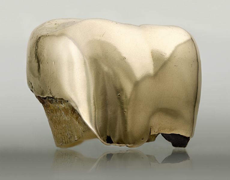 Ewa Axelrad, It Is Safe, 2011-12. Backlit Duratrans print of an extracted gold tooth. Courtesy the artist, BWA Warszawa and Copperfield, London